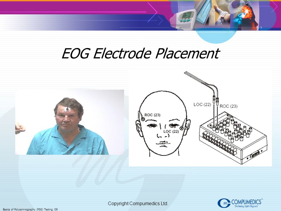 EOG Electrode Placement