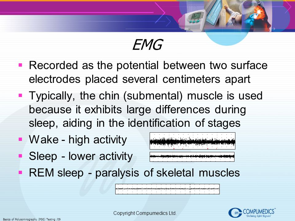 EMG Recorded as the potential between two surface electrodes placed several centimeters apart.