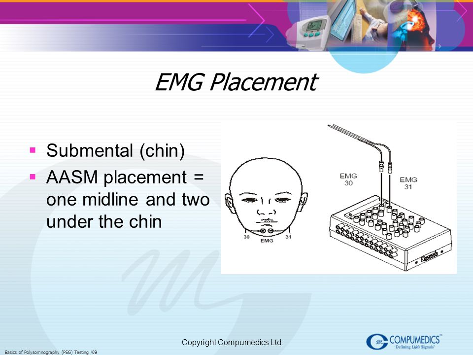 EMG Placement Submental (chin)