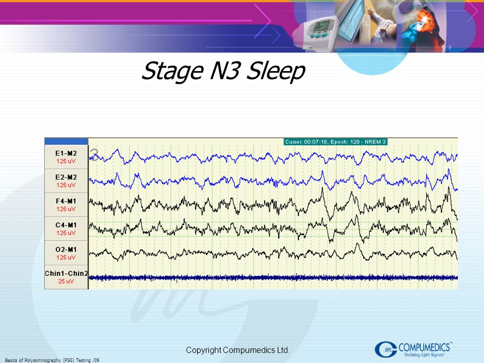 Stage N3 Sleep