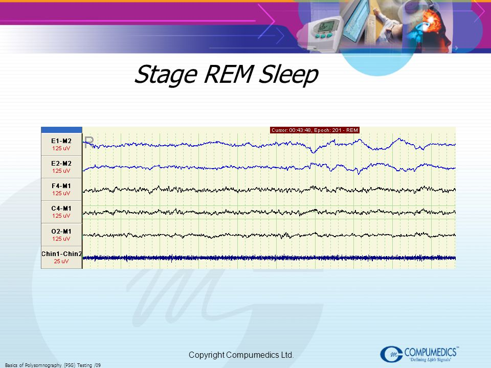 Stage REM Sleep