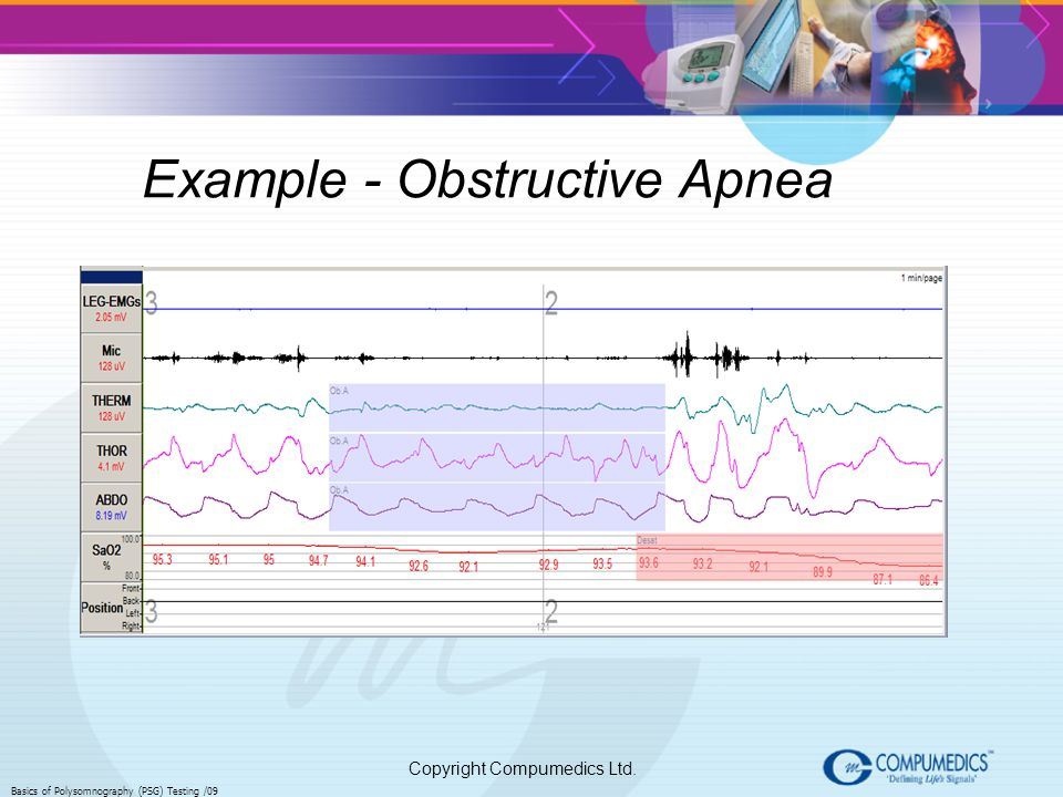 Example - Obstructive Apnea