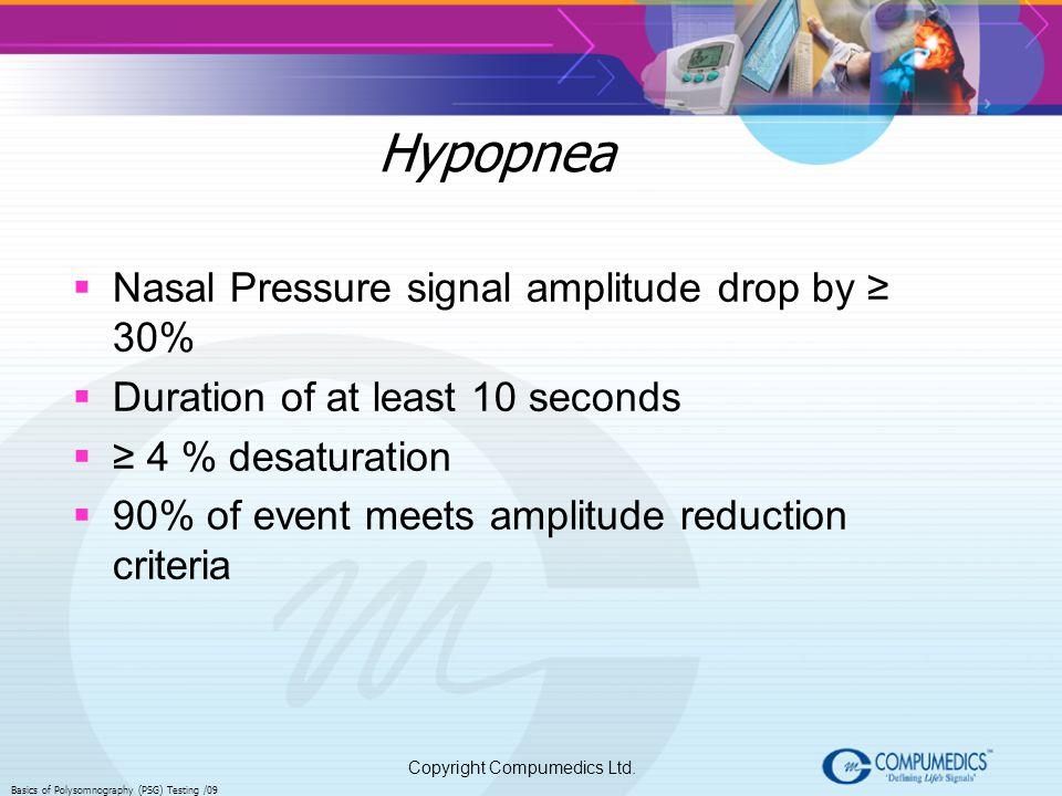 Hypopnea Nasal Pressure signal amplitude drop by ≥ 30%