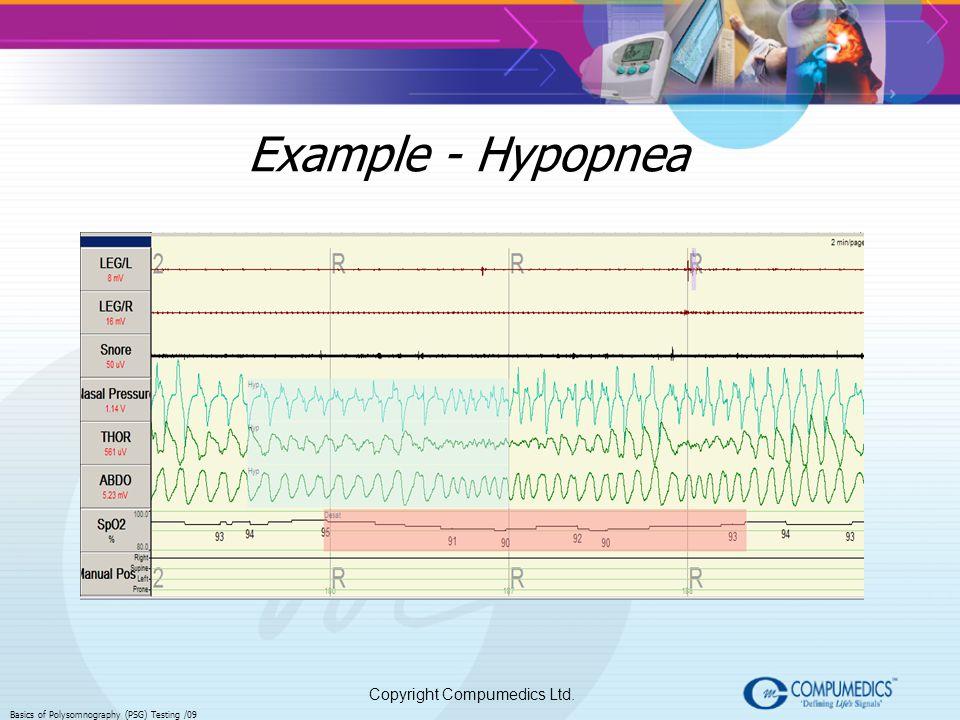 Example - Hypopnea