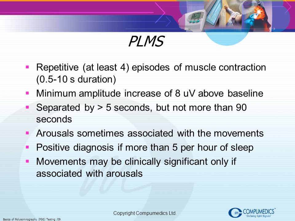 PLMS Repetitive (at least 4) episodes of muscle contraction (0.5-10 s duration) Minimum amplitude increase of 8 uV above baseline.