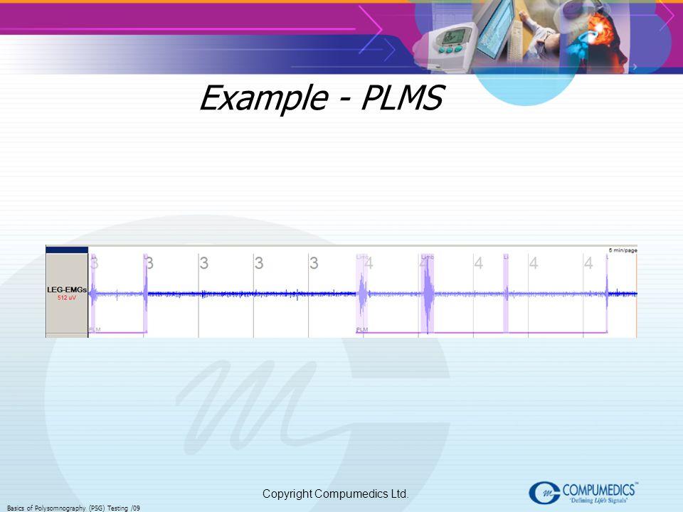 Example - PLMS