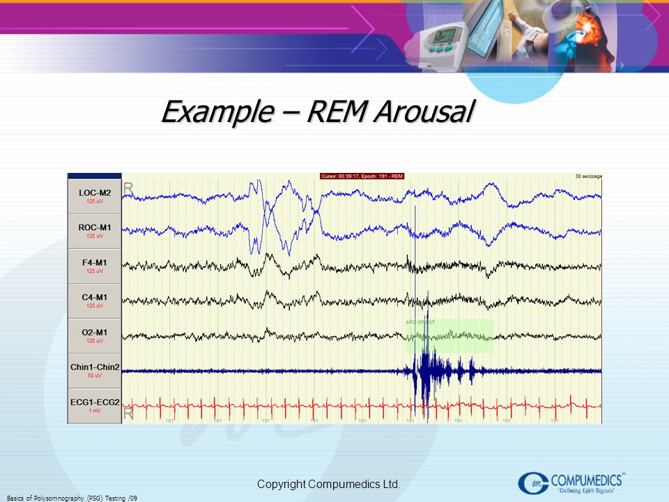 Example – REM Arousal