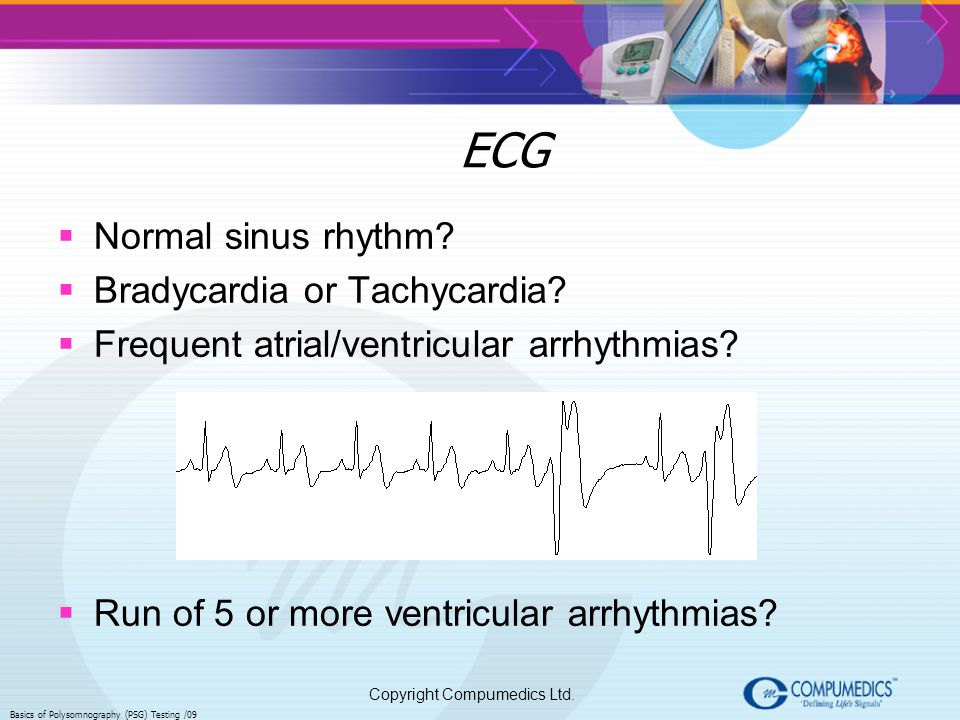 ECG Normal sinus rhythm Bradycardia or Tachycardia