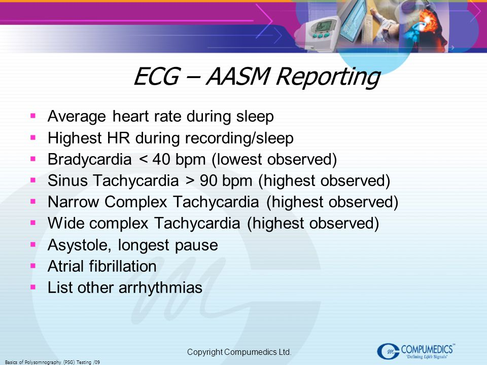 ECG – AASM Reporting Average heart rate during sleep