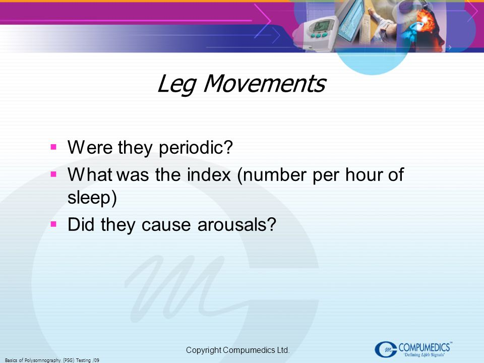 Leg Movements Were they periodic
