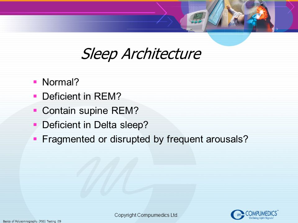 Sleep Architecture Normal Deficient in REM Contain supine REM