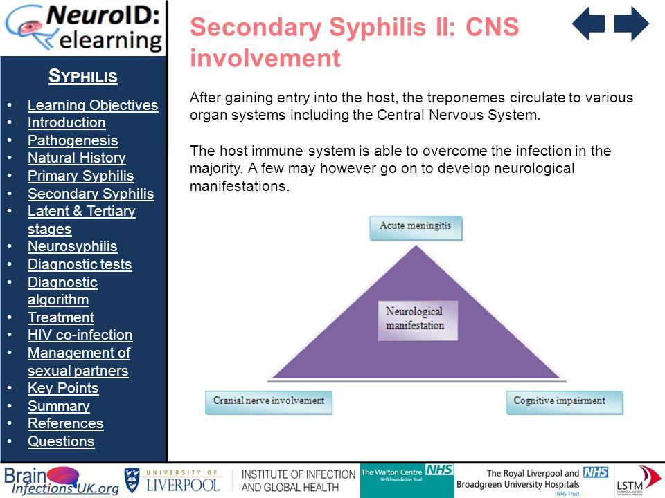 Secondary Syphilis II: CNS involvement