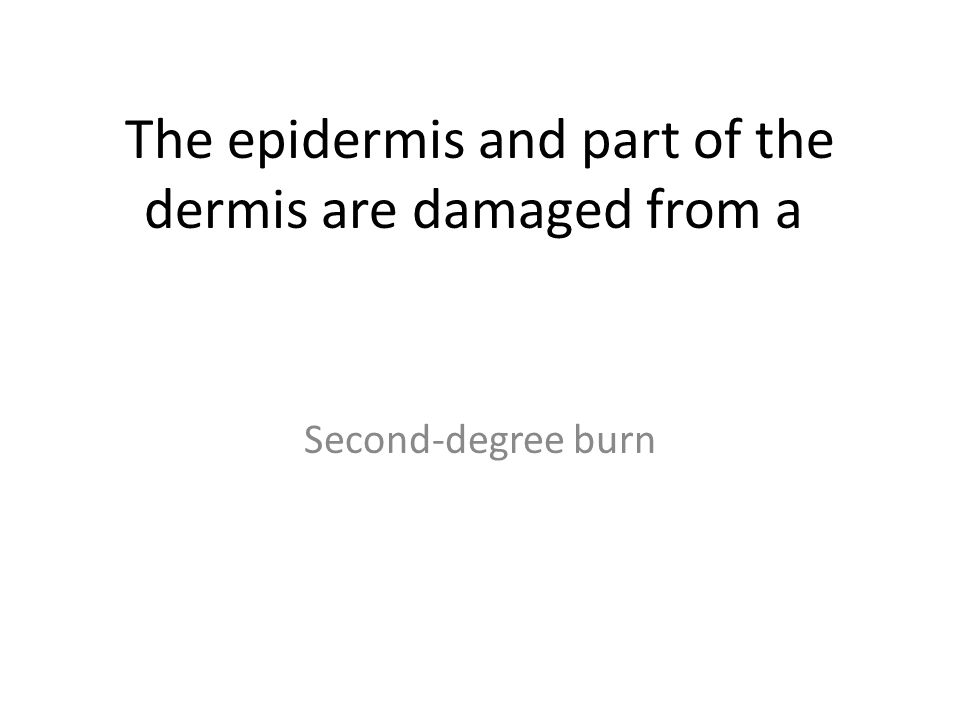 The epidermis and part of the dermis are damaged from a