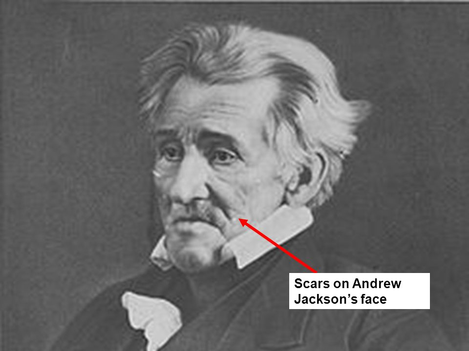 Scars on Andrew Jackson's face