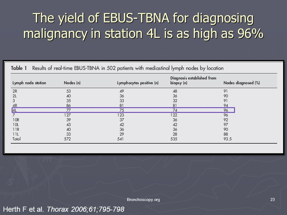 The yield of EBUS-TBNA for diagnosing malignancy in station 4L is as high as 96%