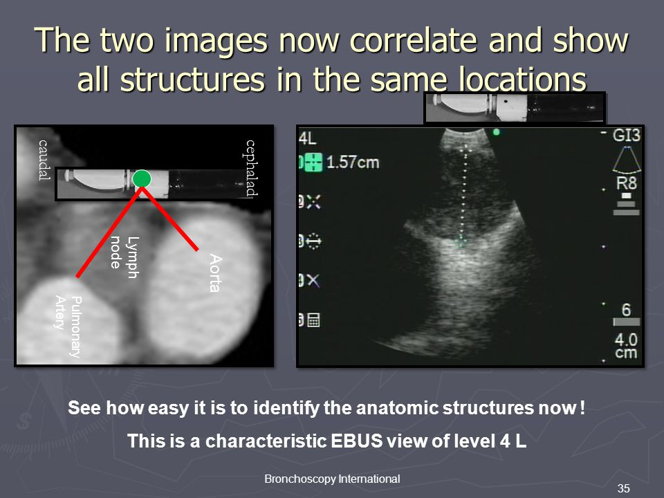 The two images now correlate and show all structures in the same locations