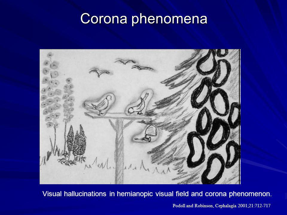 Corona phenomena Visual hallucinations in hemianopic visual field and corona phenomenon.