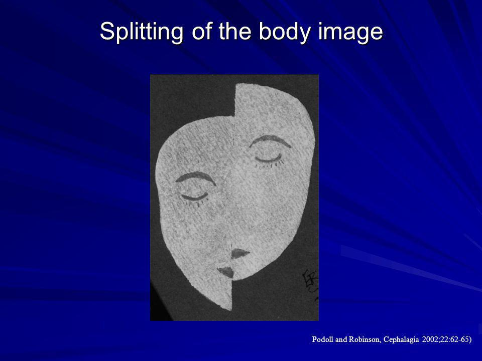 Splitting of the body image