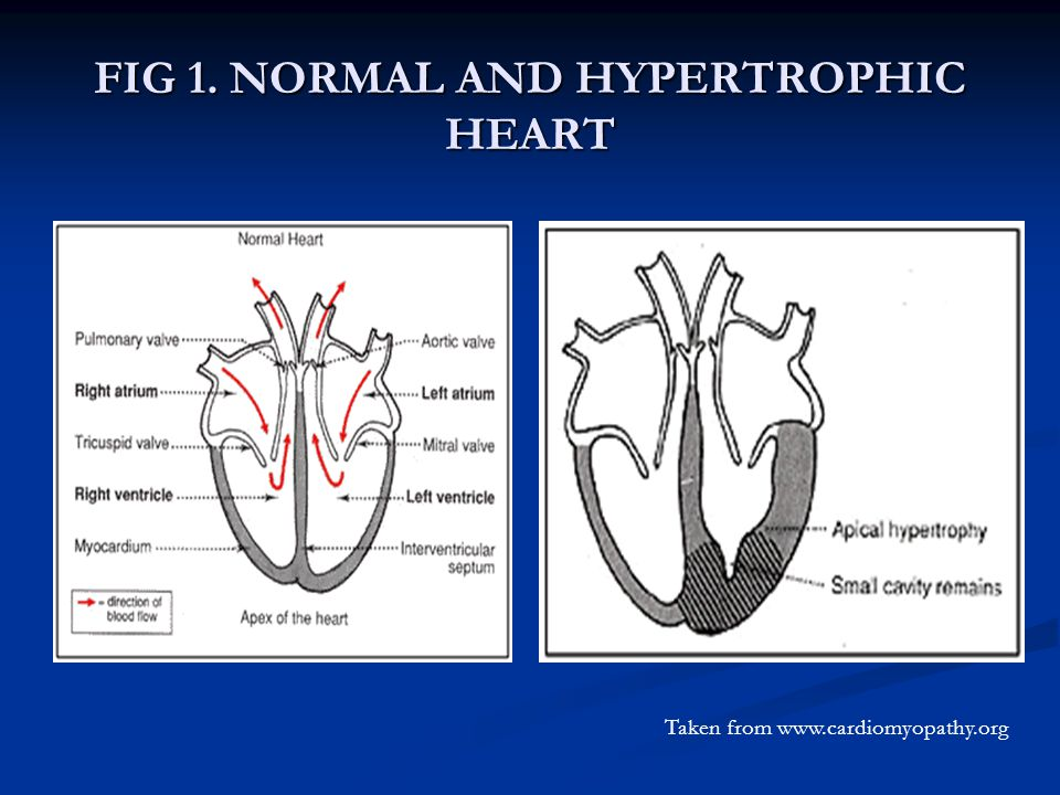 FIG 1. NORMAL AND HYPERTROPHIC HEART