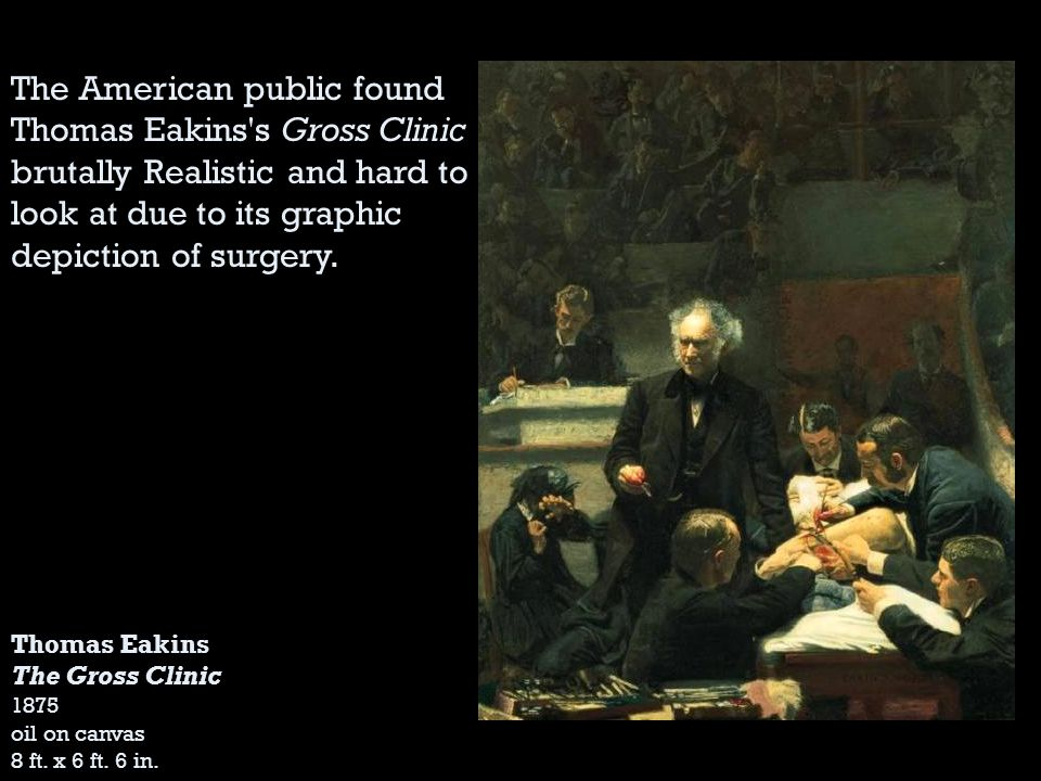 The American public found Thomas Eakins s Gross Clinic brutally Realistic and hard to look at due to its graphic depiction of surgery.