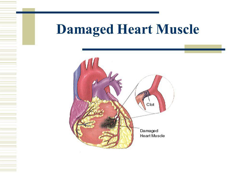 Damaged Heart Muscle