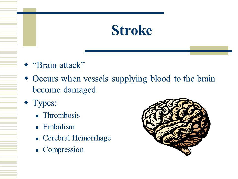 Stroke Brain attack Occurs when vessels supplying blood to the brain become damaged. Types: Thrombosis.