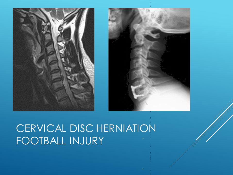 Cervical Disc Herniation Football Injury