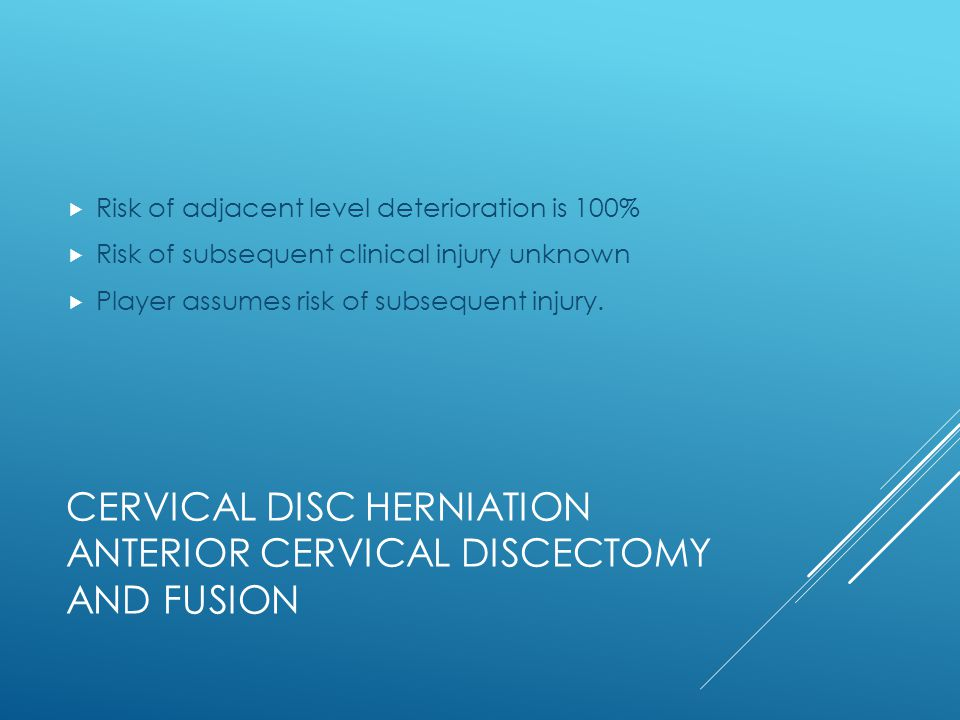 Cervical disc herniation anterior cervical discectomy and fusion