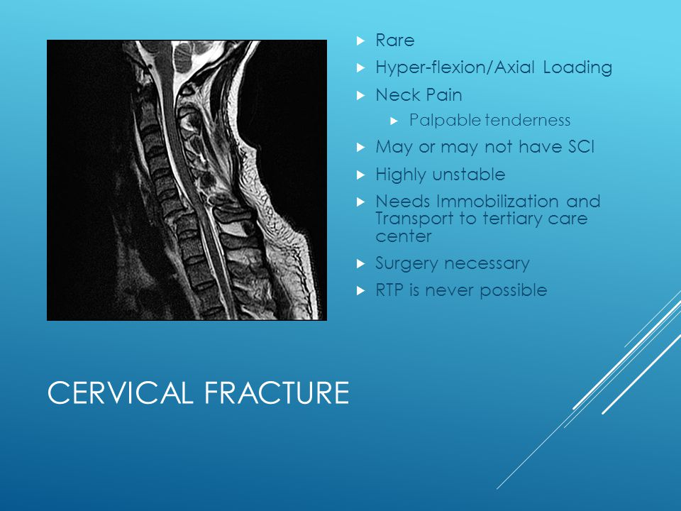 Cervical Fracture Rare Hyper-flexion/Axial Loading Neck Pain