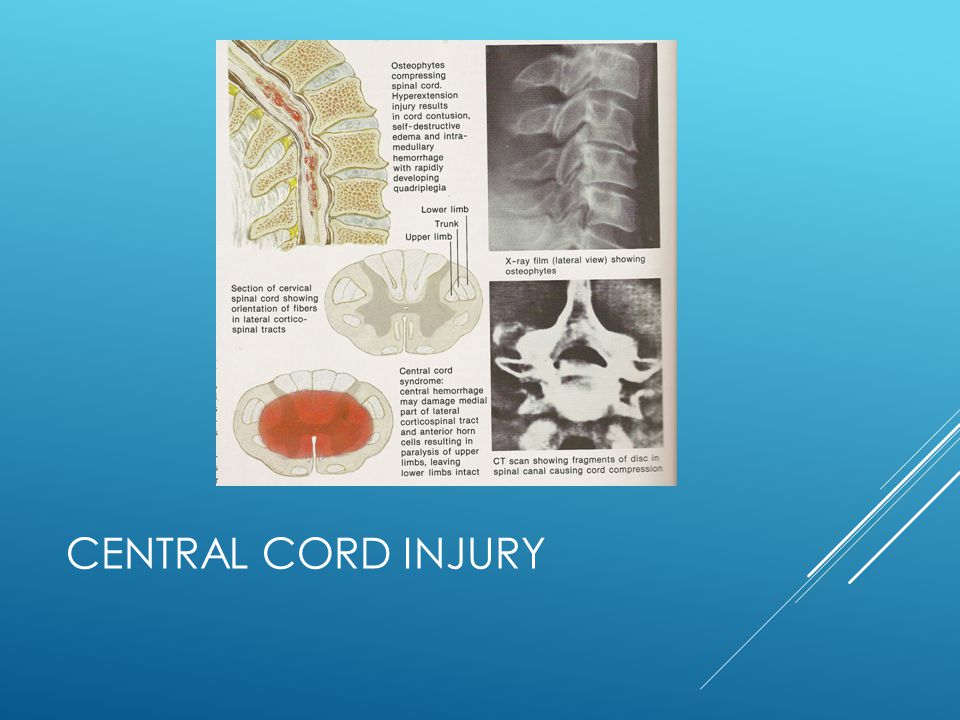 Central Cord Injury