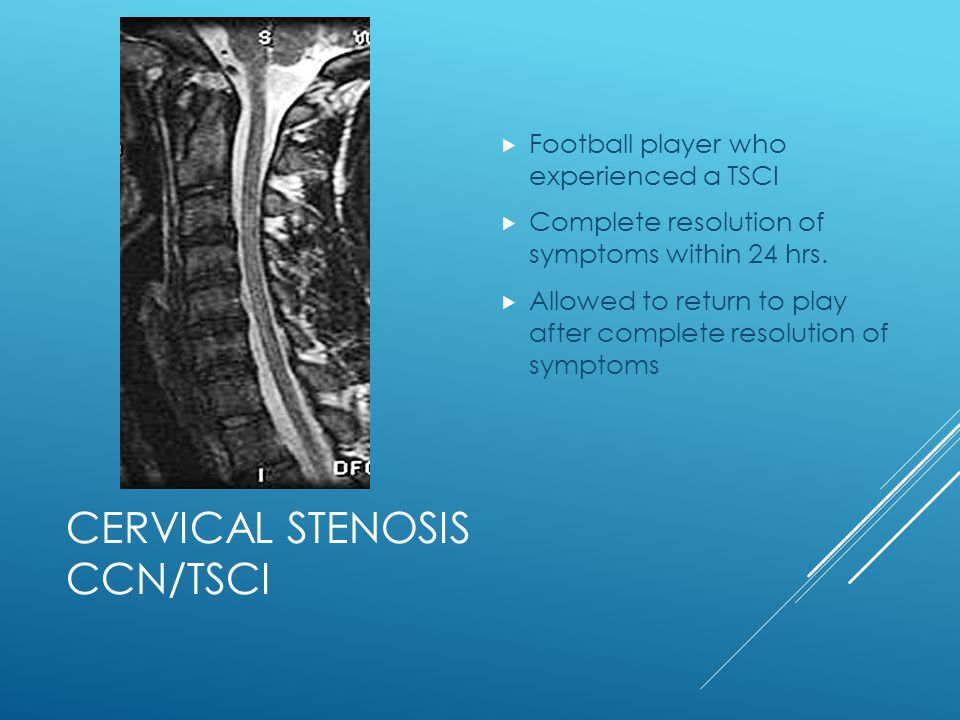 Cervical Stenosis CCN/TSCI