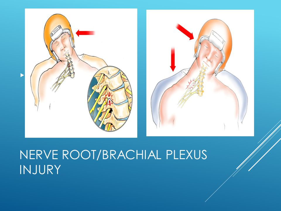 Nerve root/brachial plexus injury