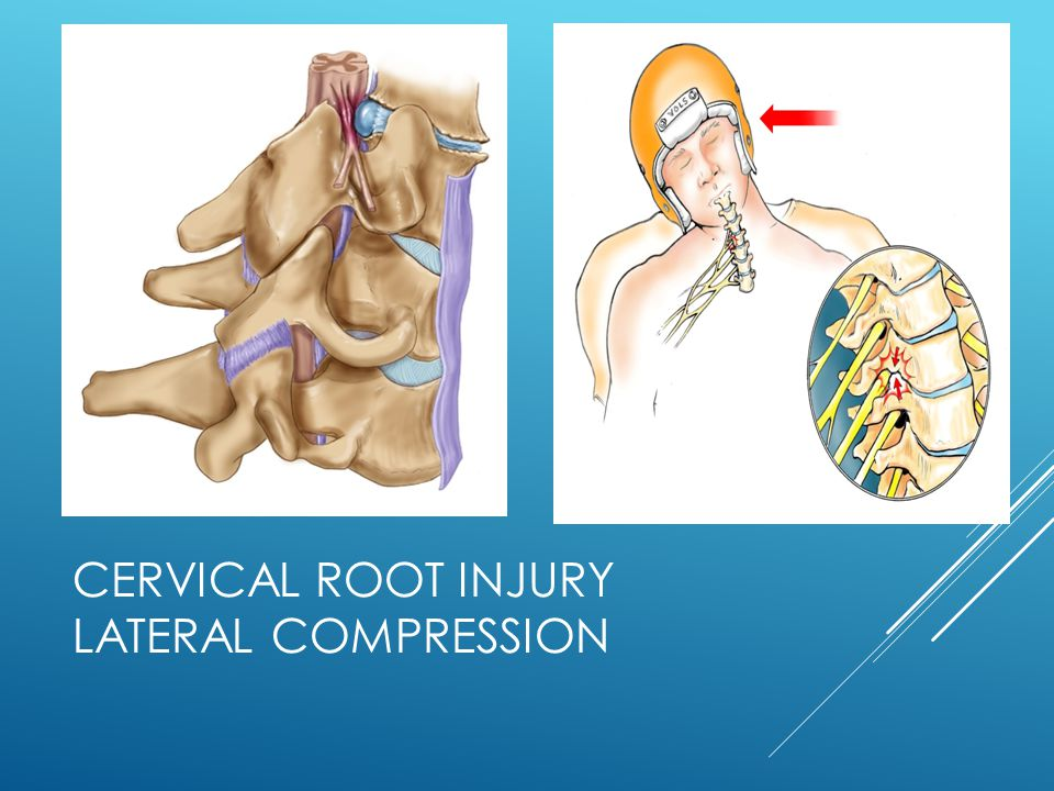 Cervical Root Injury Lateral Compression