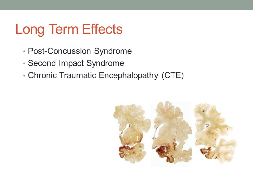 Long Term Effects Post-Concussion Syndrome Second Impact Syndrome