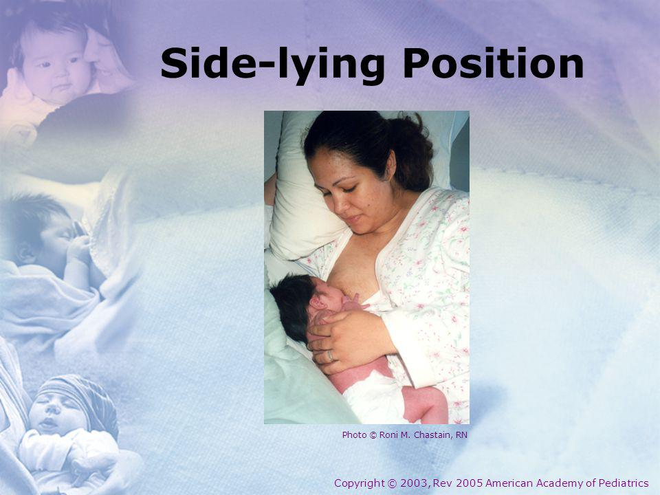 Side-lying Position