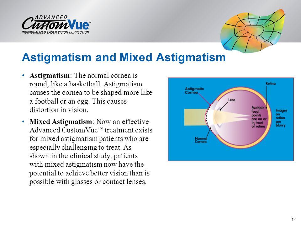 Astigmatism and Mixed Astigmatism