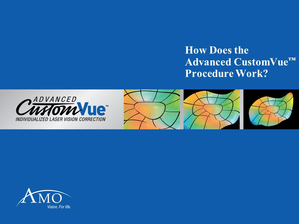 How Does the Advanced CustomVue™ Procedure Work