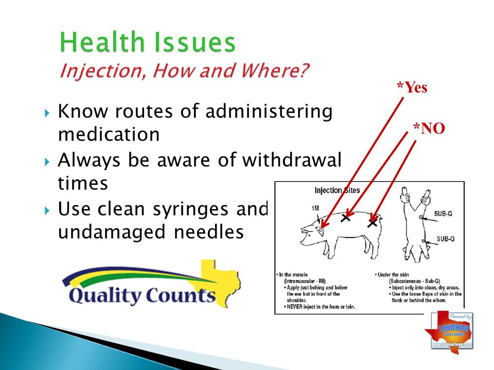 Health Issues Injection, How and Where