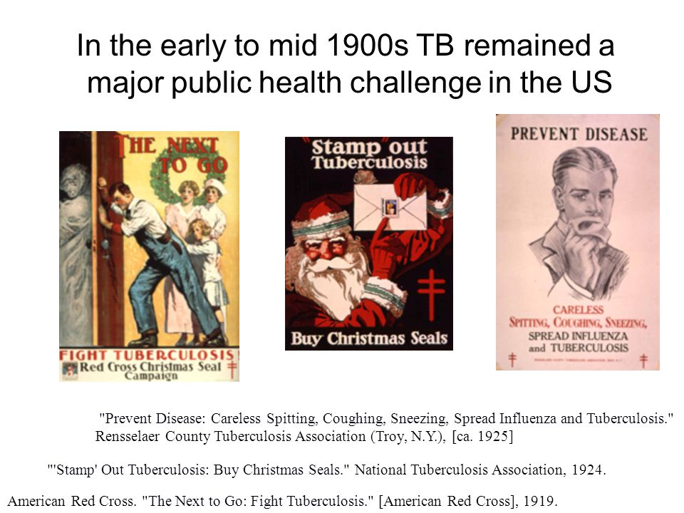 In the early to mid 1900s TB remained a