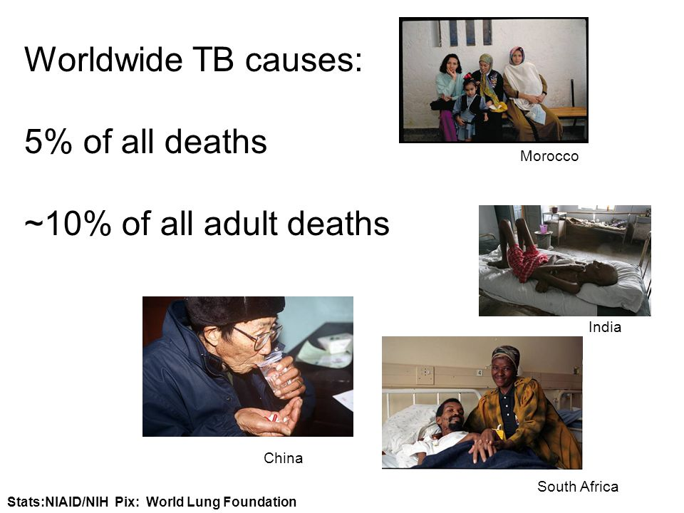 Worldwide TB causes: 5% of all deaths ~10% of all adult deaths Morocco