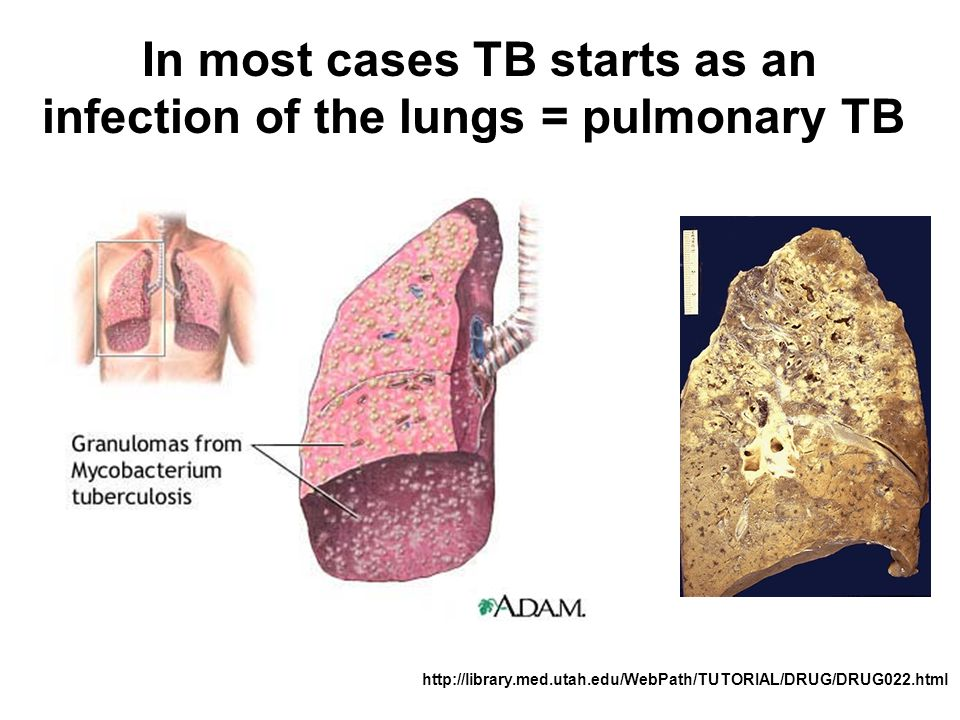 In most cases TB starts as an infection of the lungs = pulmonary TB