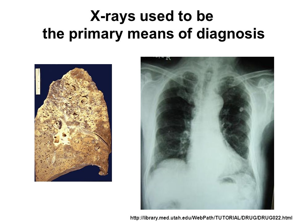 the primary means of diagnosis