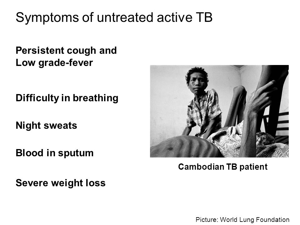 Symptoms of untreated active TB