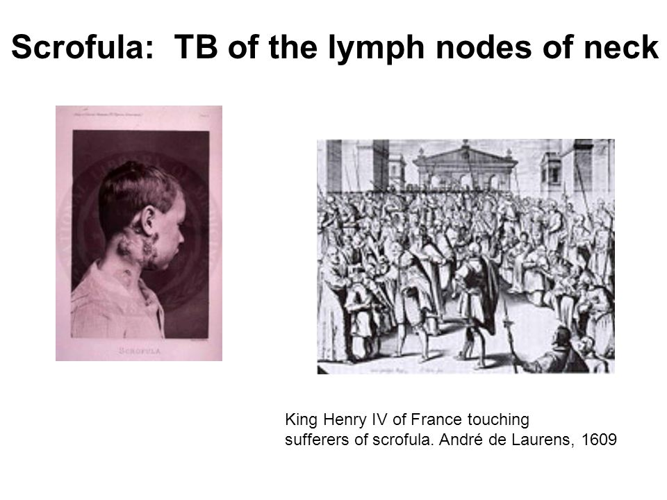Scrofula: TB of the lymph nodes of neck