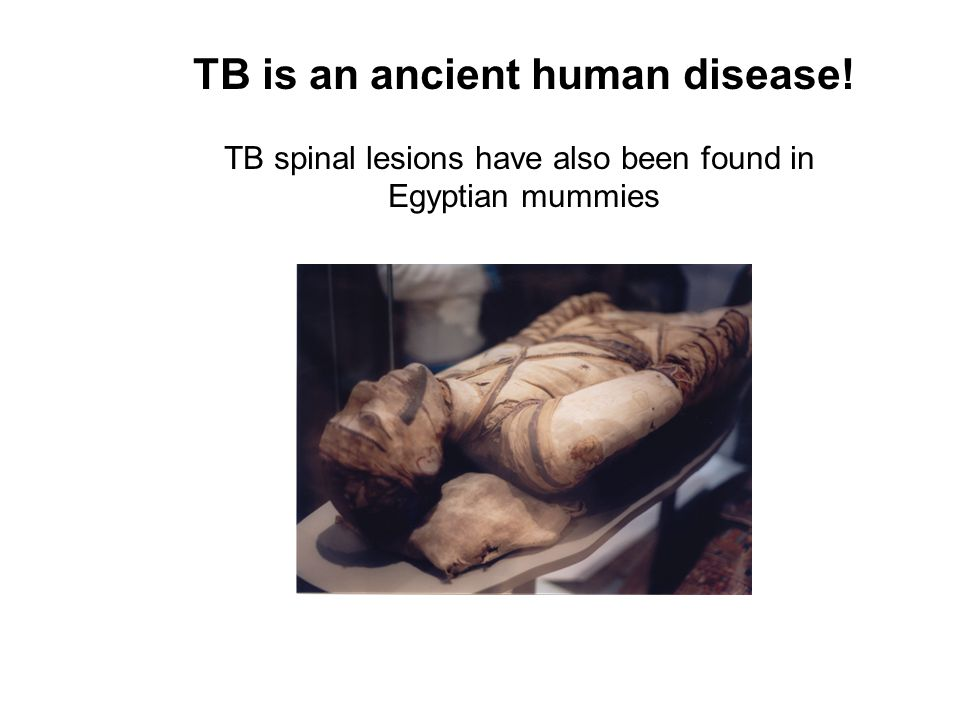 TB is an ancient human disease!