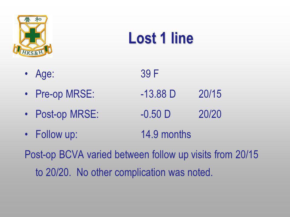Lost 1 line Age: 39 F Pre-op MRSE: -13.88 D 20/15