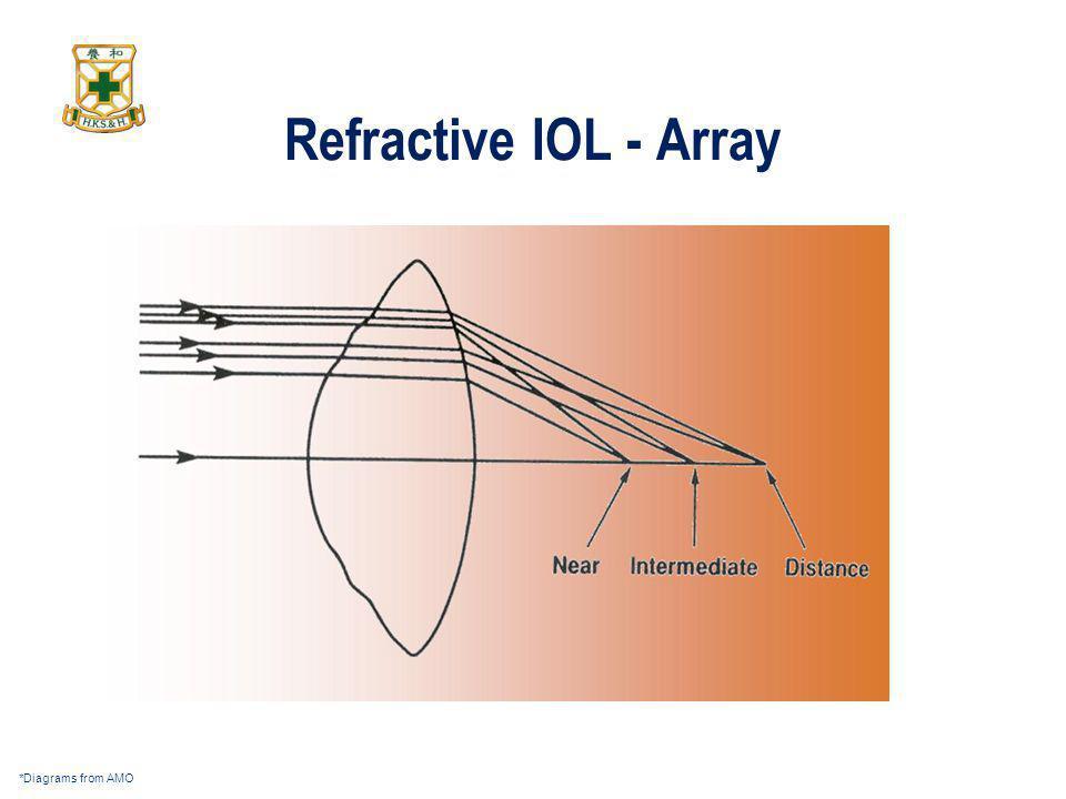 Refractive IOL - Array *Diagrams from AMO