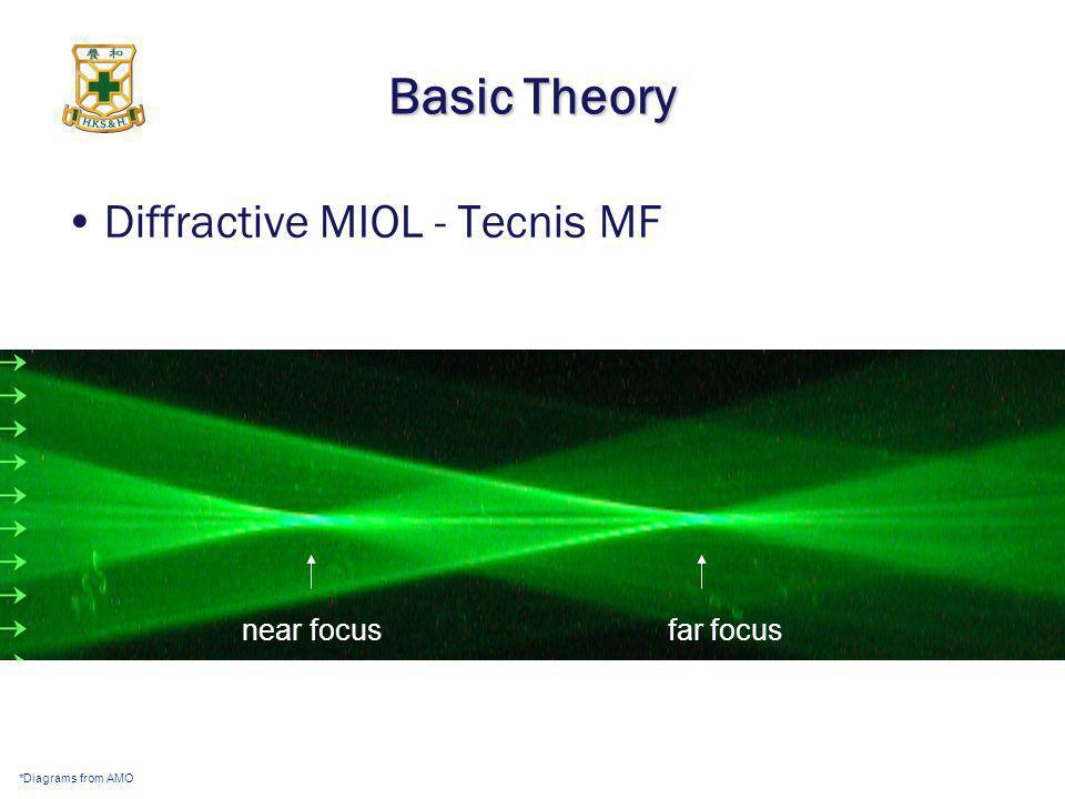 Basic Theory Diffractive MIOL - Tecnis MF near focus far focus