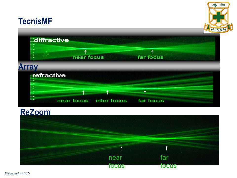 TecnisMF Array ReZoom far focus near focus *Diagrams from AMO 43