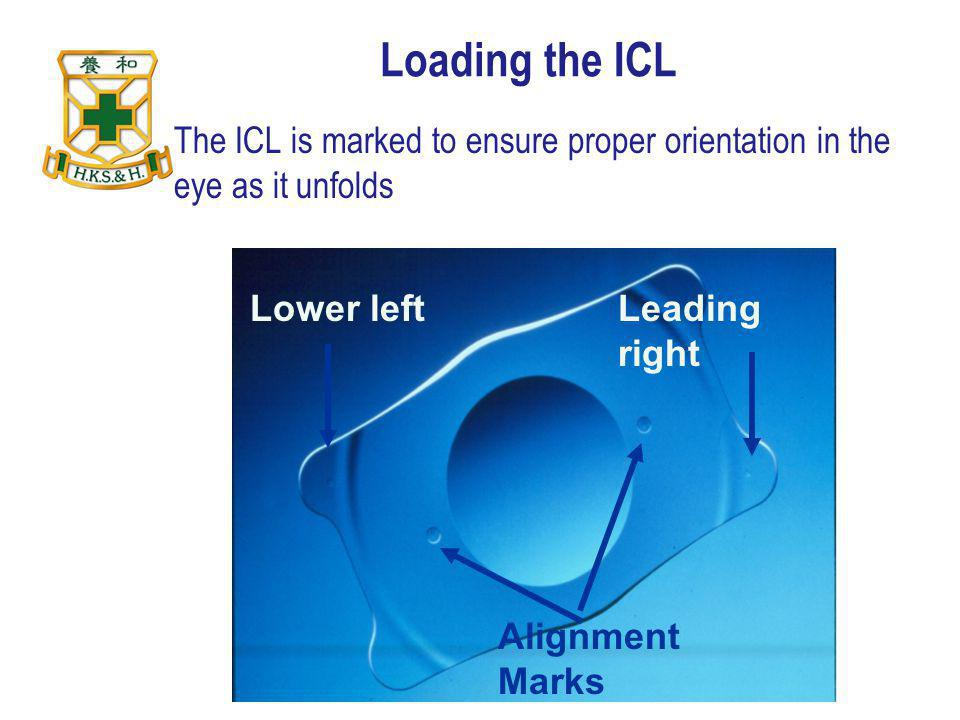 Loading the ICL The ICL is marked to ensure proper orientation in the eye as it unfolds. Lower left.